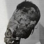 Lebka z Paracasu obvazovanim nemohla vzniknout